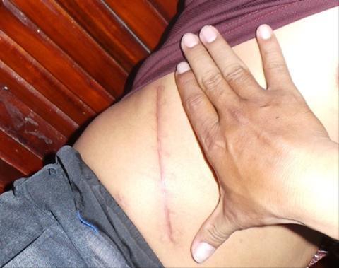 Vết mổ của một nông dân sau khi đã bán thận với giá hơn 100 triệu đồng (ảnh Phạm Tâm)