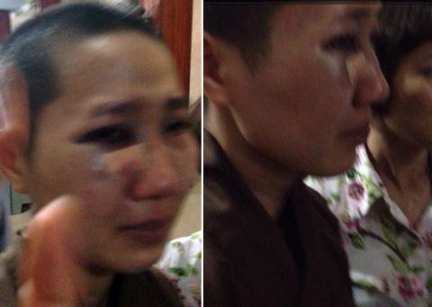 Khuôn mặt sư Thích Đàm Đạo bị thương nặng tại cơ quan công an. Ảnh do người dân cung cấp