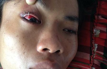 Anh Thành bị đánh bầm mắt, dập lá lách đang được điều trị tại bệnh viện.