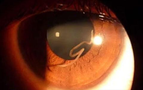 Giun chỉ sống ký sinh trong mắt người.