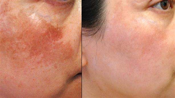 20 ngày trị hết sạch 70% nám da và tàn nhang