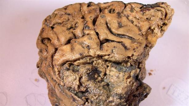 Chấn động: Phát hiện bộ não còn nguyên sau 2.600 năm