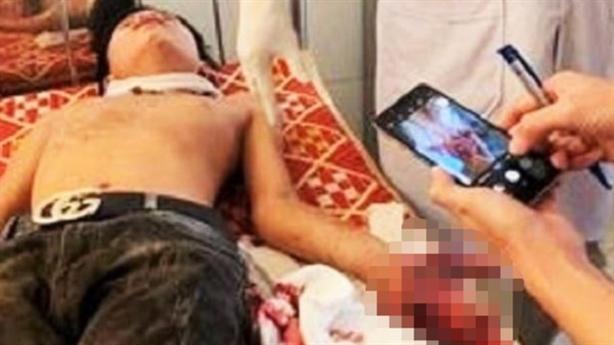 Laptop phát nổ, 3 học sinh bị thương: 'Sạc không dùng pin'
