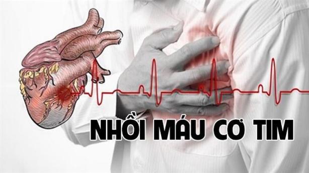 Tự cứu mình nhờ dấu hiệu cảnh báo nhồi máu cơ tim