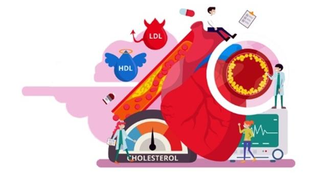 Tại sao Lipidcleanz là công thức kiểm soát cholesterol hiệu quả?