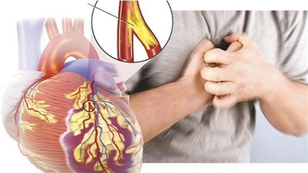 Cách giảm đau thắt ngực cho người thiếu máu cơ tim