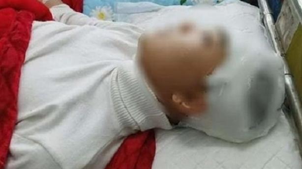 Nam sinh bị bạn đánh vỡ sọ não: Tổn thương 49%
