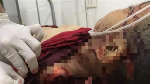 Nghi bé lớp 3 bị sát hại: 'Có vết chém'